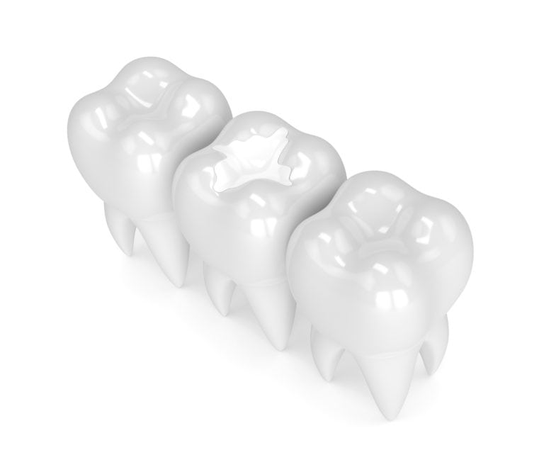 Computerized image of a composite filling on a tooth